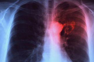 Svetski dan borbe protiv tuberkoloze – 24. Mart